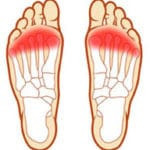 fore-foot-pain-01