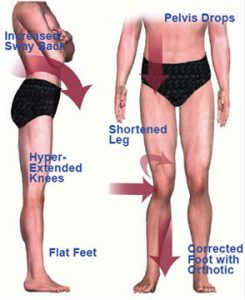 How to treat a leg length difference - Performance Podiatry